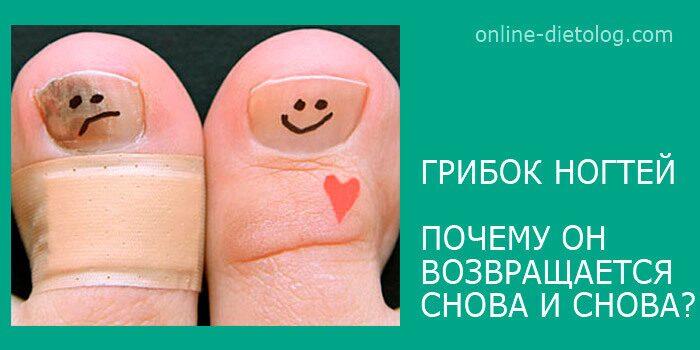 Грибок-ногтей.-Как-избавиться-от-грибка