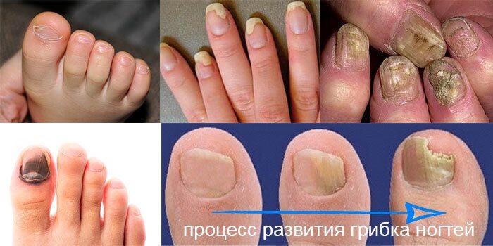 Процесс-развития-грибка-ногтей.-Фото.-Онихомикоз,-поражение-ногтевой-пластины-грибком