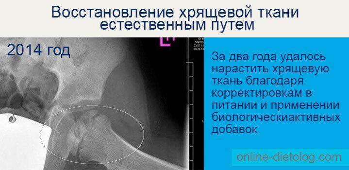 Восстановление-хряща-тазобедренного-сустава-у-ребенка-7-лет