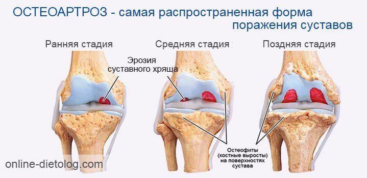Стадии-разрушения-хрящевой-ткани-суставов